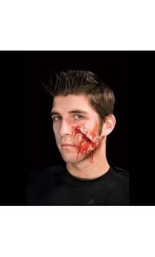 Cicatrice Avec Epingles
