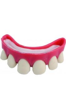 Dentier dents écartées