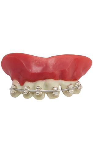 Dentier Appareil Dentaire
