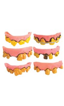 Dentier Souple